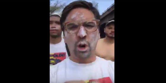Así le dejan la cara los policías bolivarianos al vicepresidente del Parlamento venezolano