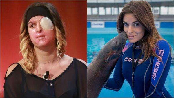 La modelo italiana desfigurada con ácido por su ex novio decidió mostrar su rostro