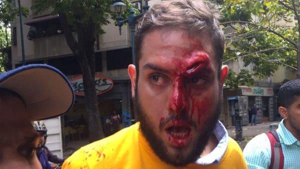 Así le corta la cara con un vidrio al diputado opositor una horda chavista