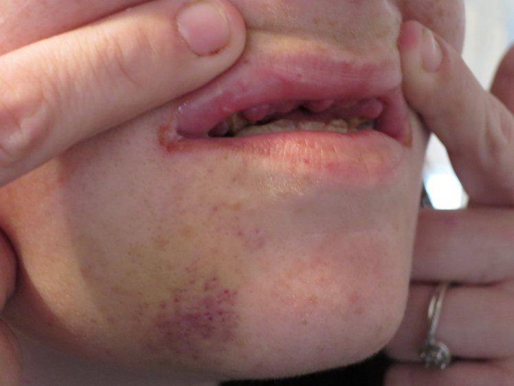 Los 15 homófobos que le han partido la cara y los dientes a ocho lesbianas