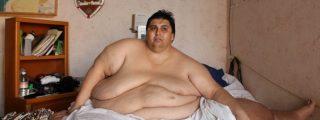 Así es la vida del mexicano más obeso del mundo