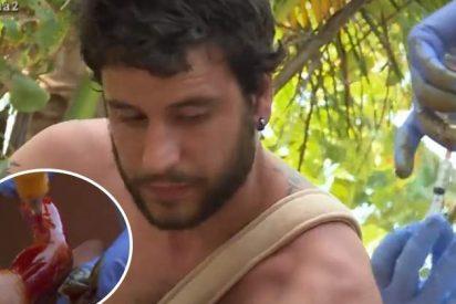 Concursante de 'La isla' casi pierde un dedo de un machetazo