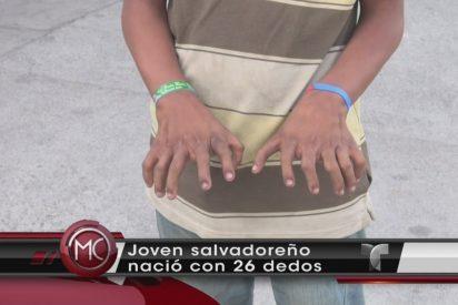 [VÍDEO] El sorprendente caso del joven que tiene 26 dedos