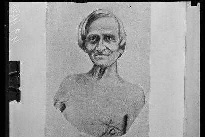 El hombre con un agujero en el cuerpo que le permitió a los científicos entender la digestión
