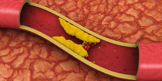 Los 8 alimentos que te suben el colesterol