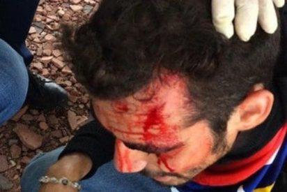 La policía chavista dispara a la cabeza de los manifestantes opositores con botes de gases lacrimógenos