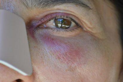 [AUDIO] Las impactantes declaraciones a Carlos Herrera de la monja agredida en Granada