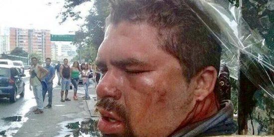"""El vídeo prohibido de los """"neonazis venezolanos"""" poniendo la soga al cuello a un 'chavista'"""