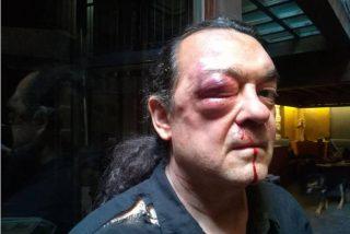 La Policía detiene a dos por la paliza al podemita Barredo pero no aclara si también son de Podemos