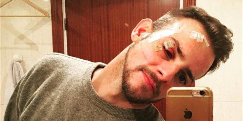 Àlex Casademunt, de 'Operación Triunfo', se enfrenta a 3 años de cárcel por una pelea