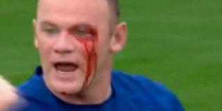 [VÍDEO] Así fue el golpe que casi deja tuerto a Rooney