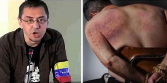 Descargas eléctricas, gas pimienta en los ojos y amenazas de violación: así tortura el régimen que financió a Podemos