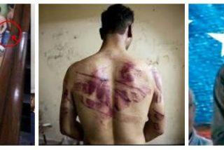 """Relatos espeluznantes de los torturados por Maduro: """"Me quemaron la cara con químicos"""""""