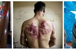 Relatos espeluznantes de los torturados por Maduro: