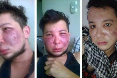 """Consecuencias reales de una mala cirugía estética: """"Tenía mi cara destruida, podrida, me salía pus"""""""