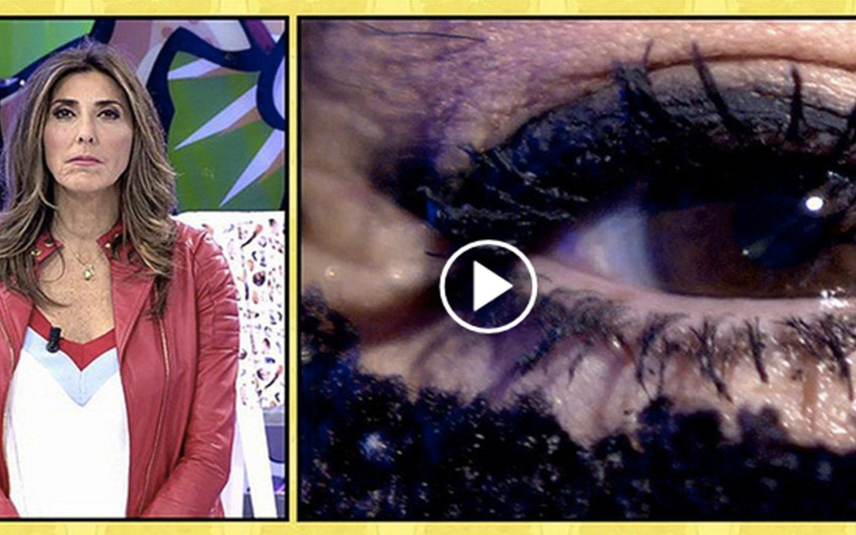 'Sálvame': La inquietante entrevista al ojo de Leticia Sabater tras su operación