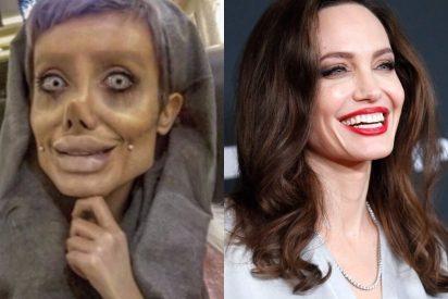 [VÍDEO] Se opera 50 veces para ser como Angelina Jolie y acaba como la novia cadáver