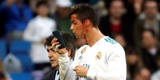Cristiano Ronaldo pidió un móvil para ver si tenía muy rajada la cara y cómo sangraba su herida