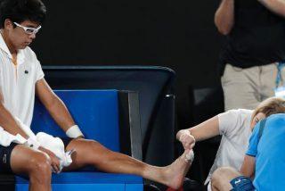 Asi tenía el pie izquierdo del coreano Hyeon Chung cuando abandonó ante Roger Federer