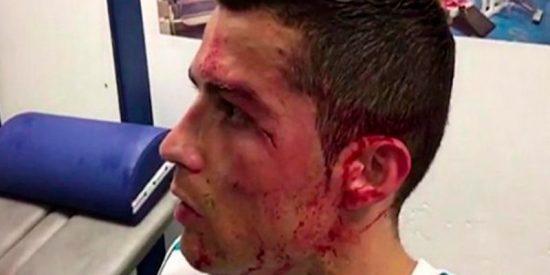 Descojone en las redes con esta foto de Cristiano mirándose una herida en un móvil