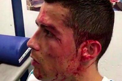 Así de complicado fue curar la brecha a Cristiano Ronaldo