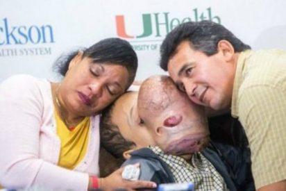 Muere Emanuel, el niño cubano con un gigantesco tumor en la cara que fue operado en EEUU