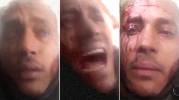 Estas son las fotos que presentarán ante la Corte Penal para demostrar que la dictadura de Maduro ejecutó a Óscar Pérez [imágenes sensibles]