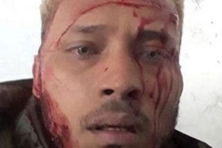 Venezuela: El agónico mensaje al mundo del policía antichavista Óscar Pérez