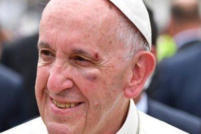 Agreden al Papa Francisco durante su recorrido en el papamóvil por Chile