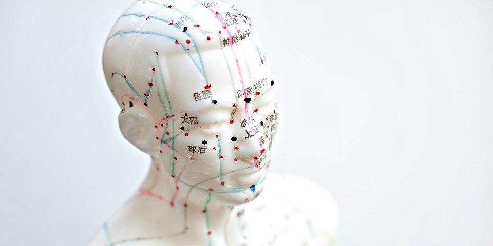 ¿Sabes que la acupuntura podría ser más eficaz que los tratamientos farmacológicos?