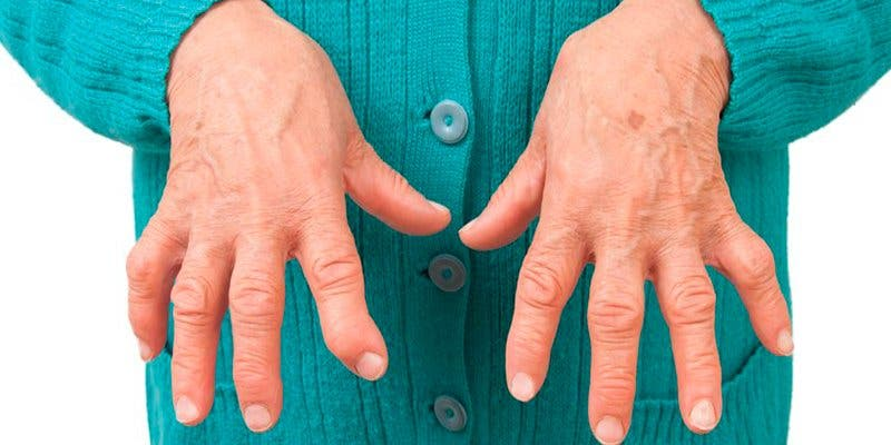 ¿Sabes que la artritis reumatoide tiene su origen en la flora intestinal?