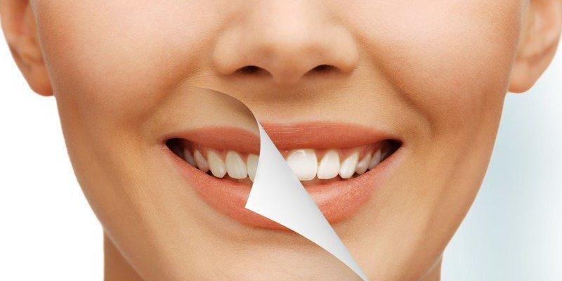 Los peligros del blanqueamiento dental y los terribles efectos secundarios que tiene