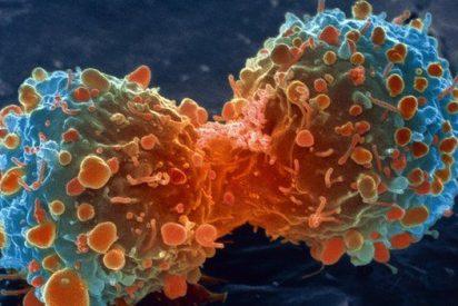 ¿Sabes qué causa los cánceres de cabeza y cuello?