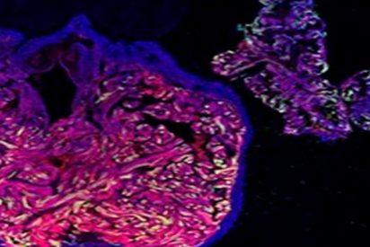 ¿Sabes cómo actúan las células cardiacas del pez cebra tras un infarto?