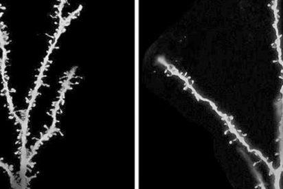 ¿Sabes qué proteína está implicada en la demencia, la esquizofrenia y el autismo?