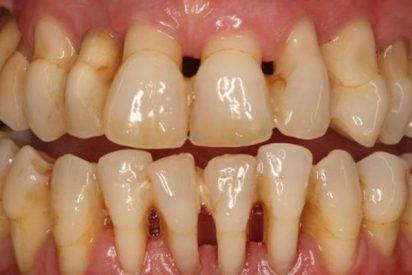 ¿Sabes que han desarrollado una app que permite predecir la pérdida de los dientes por enfermedad periodontal?