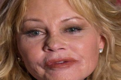 Tras ser operada de un cáncer de nariz, reaparece Melanie Griffith
