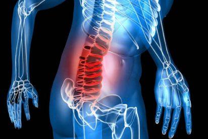 El mieloma múltiple, ese cáncer de la sangre que daña los huesos