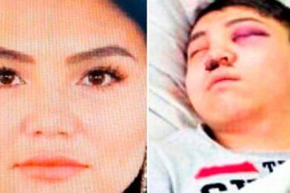 Esta mujer drogó a su novio y le cortó los testículos con un bisturí por celos