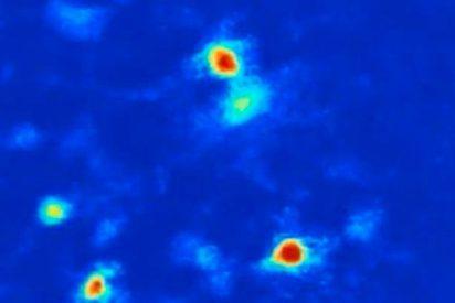 ¿Sabes cuáles son las neuronas responsables de la ansiedad?