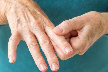 ¿Sabes lo que es la artritis y que tratamiento tiene?