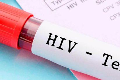 La prueba más 'sensible' para detectar el virus del sida