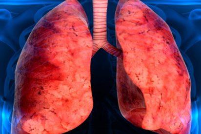 ¿Sabías que unas 7.500 personas en España padecen fibrosis pulmonar idiopática?