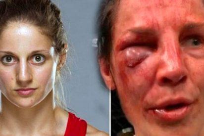 'Hecha un cuadro' quedó esta luchadora tras sufrir esta brutal paliza en la UFC