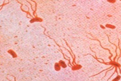 ¡OJO!: Detectan una nueva 'superbacteria' de fiebre tifoidea causante de un brote en Pakistán