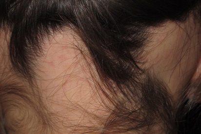 ¿Sabes qué es la alopecia areata?
