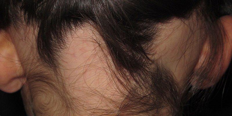 Alopecia areata: causas y síntomas.