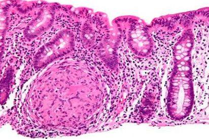 La prevalencia de enfermedad de Crohn es hasta 18 veces mayor en pacientes de Hidradenitis Supurativa