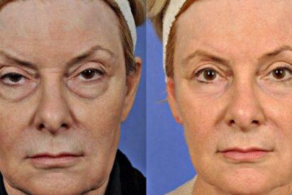 Cirugía estética: la Blefaroplastia o arregalrse los párpados para parecer más joven