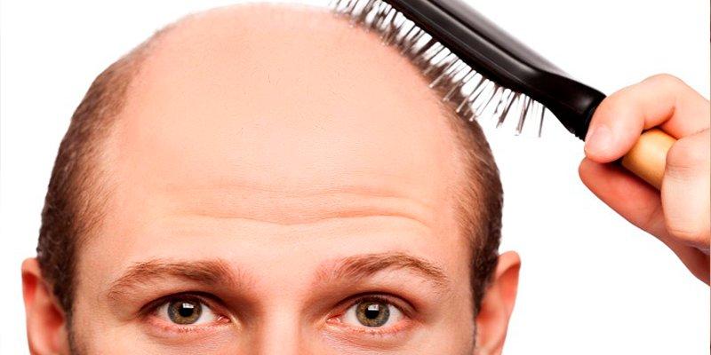 Estos son los mitos y las falsas creencias sobre la caída del cabello en primavera